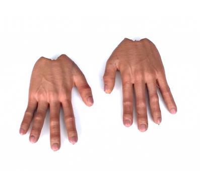 Flexhände, Flexhands